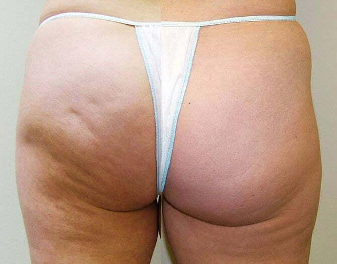 Cellulit og mesoterapi