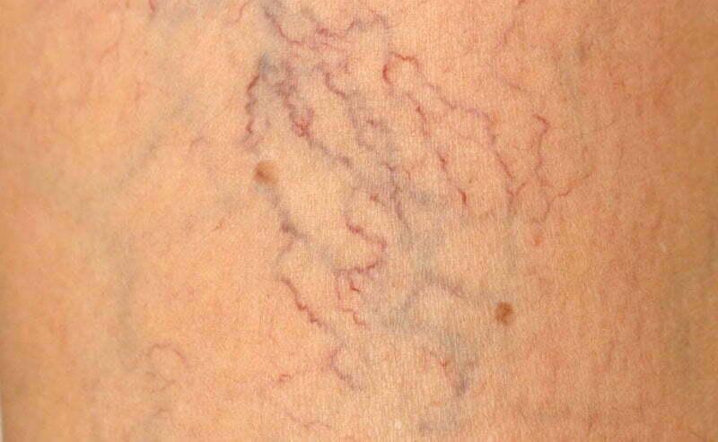 Tratamientos alternativos para venas varicosas