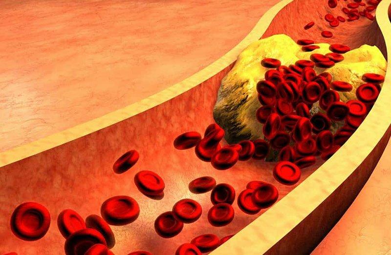 Alto nivel de azúcar en la sangre y demencia