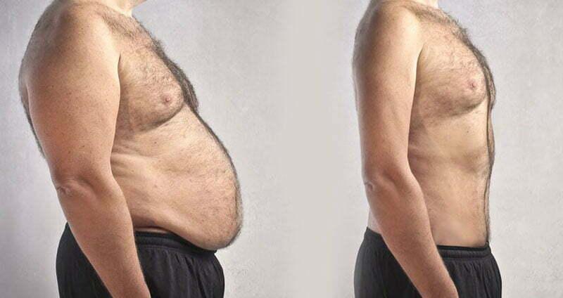 Het is tijd om afscheid te nemen van obesitas
