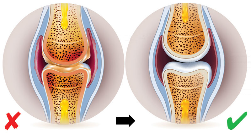 Una nueva tendencia en el tratamiento del dolor y la rigidez en las articulaciones